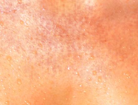 お肌について トラブル肌と子どもの肌の日焼け対策 ビオデルマ公式